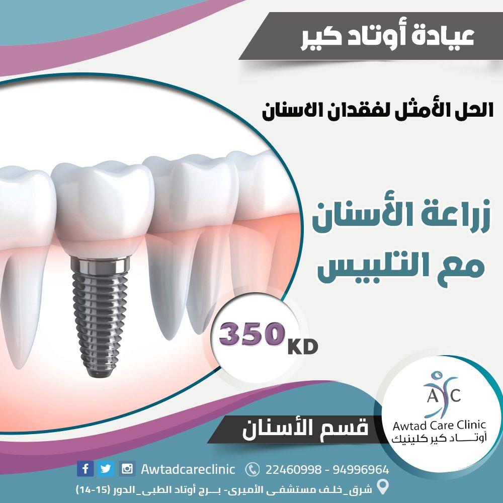 زراعة الأسنان هى الحل الأمثل لفقدان السن أوتاد كير كلينيك 22460998 94996964 Dentist اسنان المشاهير كويتيات انستغرام ابتسامة هول Toothpaste Pill Clinic