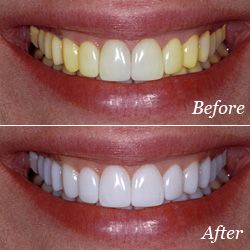 Best Dental Clinic And Surgery Care In India Is Offered By Himachaldental Com We Have Professional And Qualified