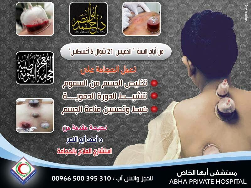 Pin On Cupping Therapy