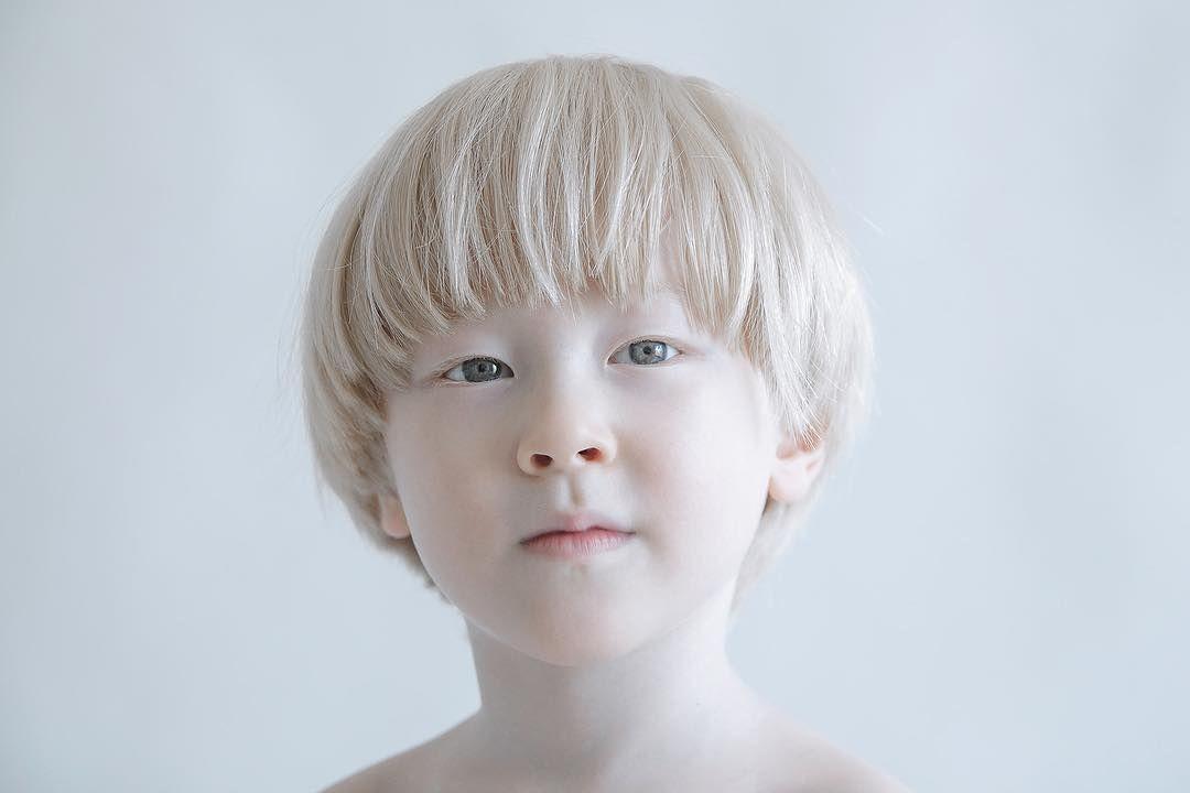 азиаты альбиносы фото нижнем