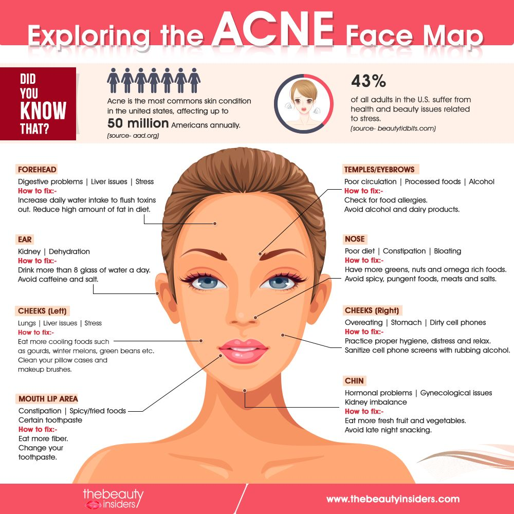 What Your Acne Is Telling You About Your Health Explore Face Mapping Alternative Health And More Face Mapping Acne Face Mapping Face Acne