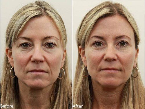 Dr Darm Eyelids Before And After T C Eyelid Surgery Laser