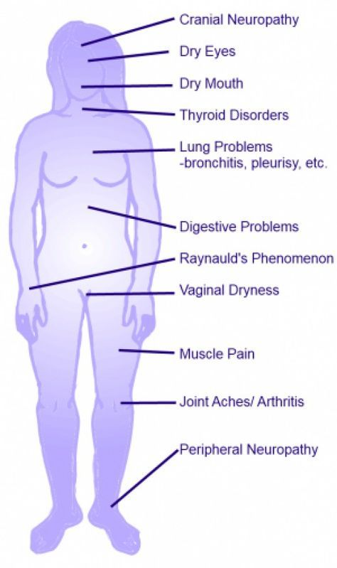 what is sjögren's syndrome? how to tell if you might have it