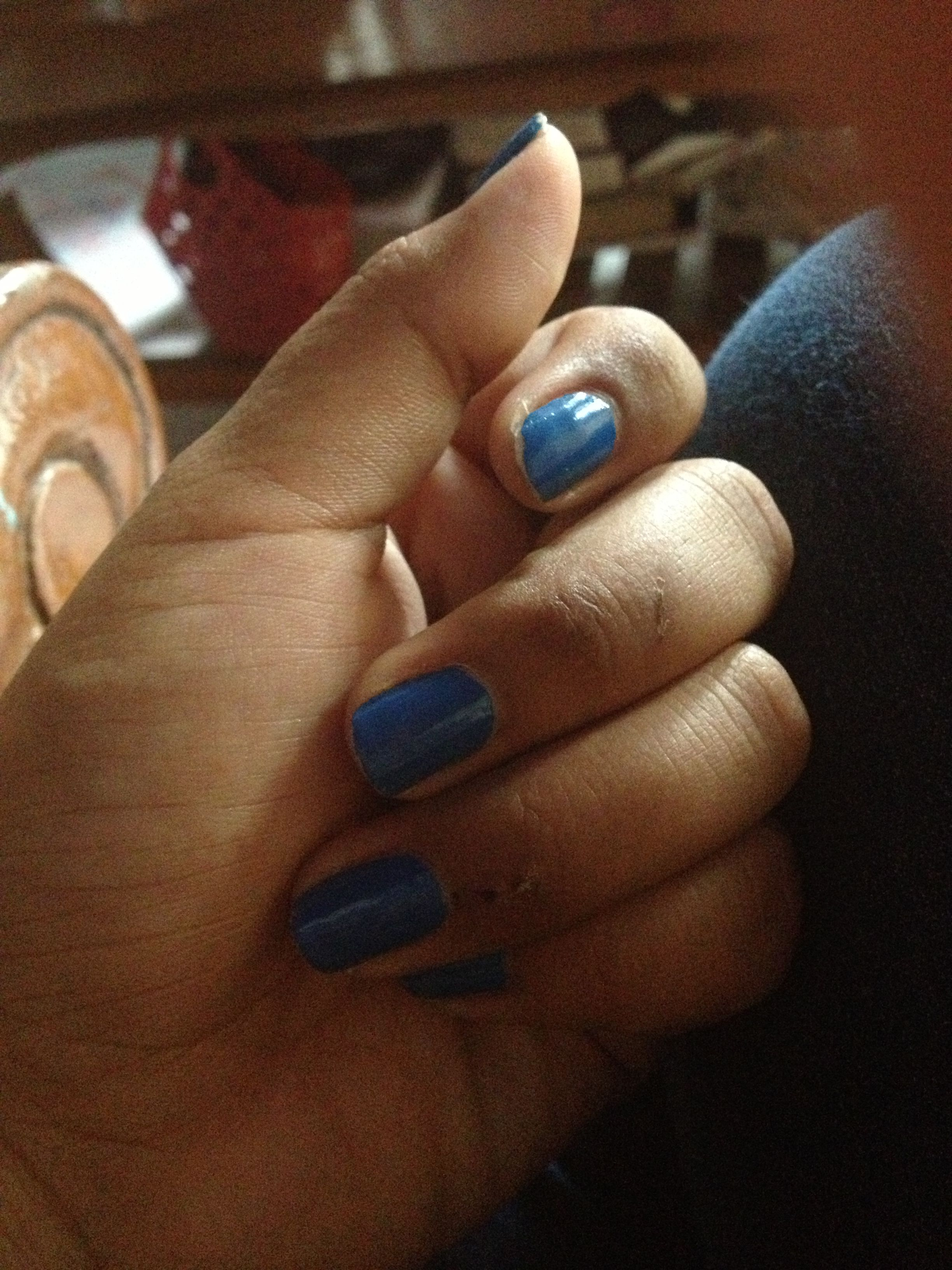Blue nails swollen fingers lol