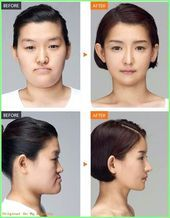 Perfect Rhinoplasty  Before and After Surgery Faces 607493437215921475 Korean fa…