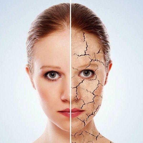 Kışın cildi korumanın yolları nelerdir? Deri, çevresel koşullardan elbette  doğrudan etkilenen bir vücut bileşen… | Ev yapımı yüz maskeleri, Cilt  ürünleri, Kuru cilt