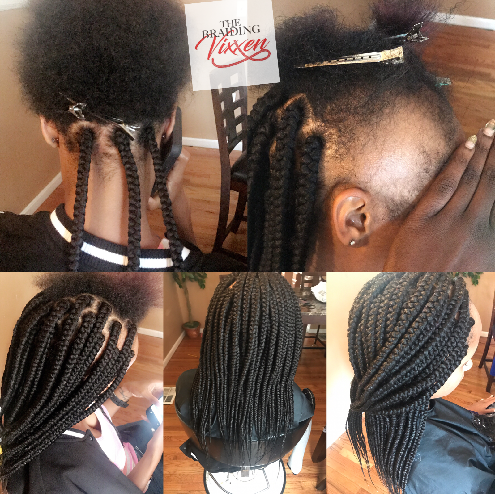 medium box braids on client who has alopecia | braiding