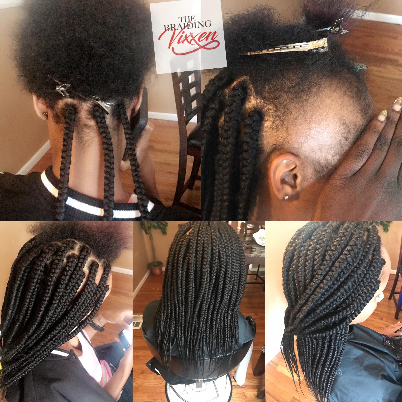 medium box braids on client who has alopecia | braiding