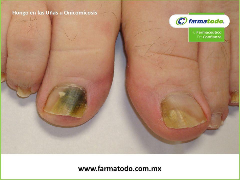Las uñas en las manos se alejan a la piel como curar