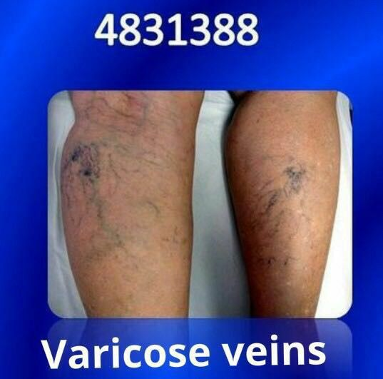 For Varicose veins