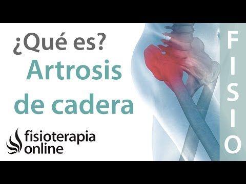 Ejercicios Para Artrosis De Cadera Como Evitar Su Aparicion Youtube Trocanteritis Dolor De Cadera Flexores De Cadera