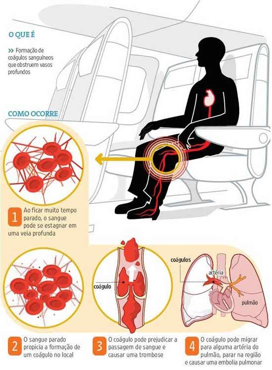 radiologia de tromboflebite profunda