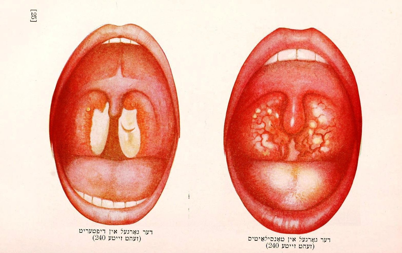 Medical Anatomy Mouth Tonsils Tongue Infection Science Body