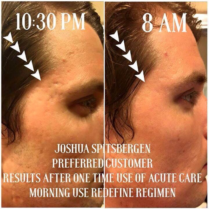 Joshua got his results from just 1 treatment from our Rodan+Fields Acute Care patches! Fill a wrinkle in your sleep, no needle required!   Message me for more info!   sortizmyrandf@gmail.com  Thank you!