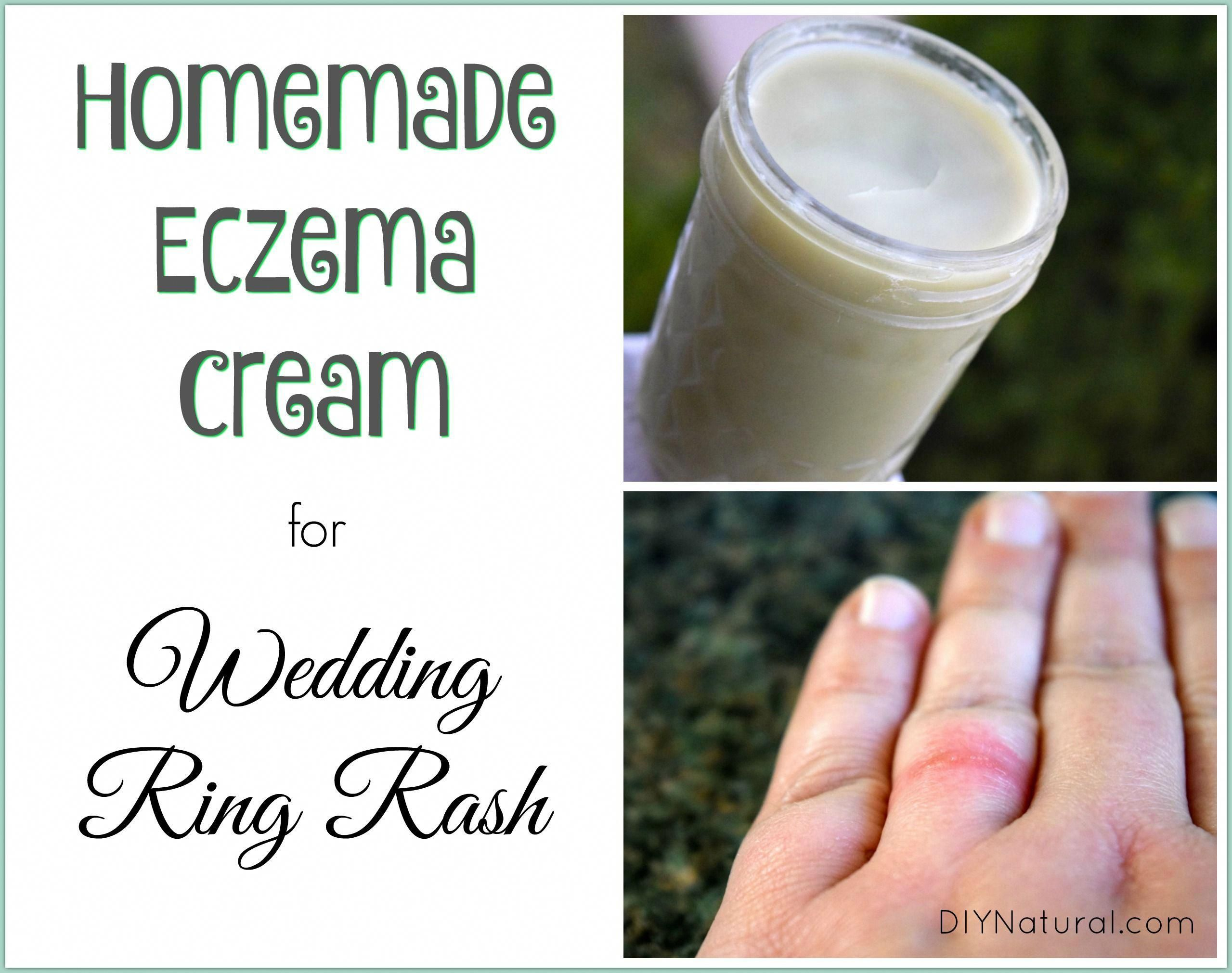I made this homemade eczema cream to heal my wedding ring