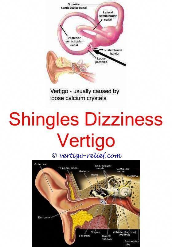 A Primer on Acupuncture   Vertigo treatment, Vertigo ...