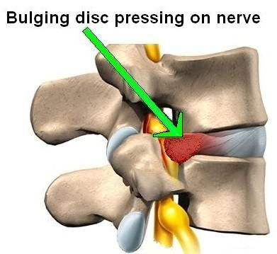 "bulging disc"" is when the material of the disc bulges into the, Cephalic Vein"