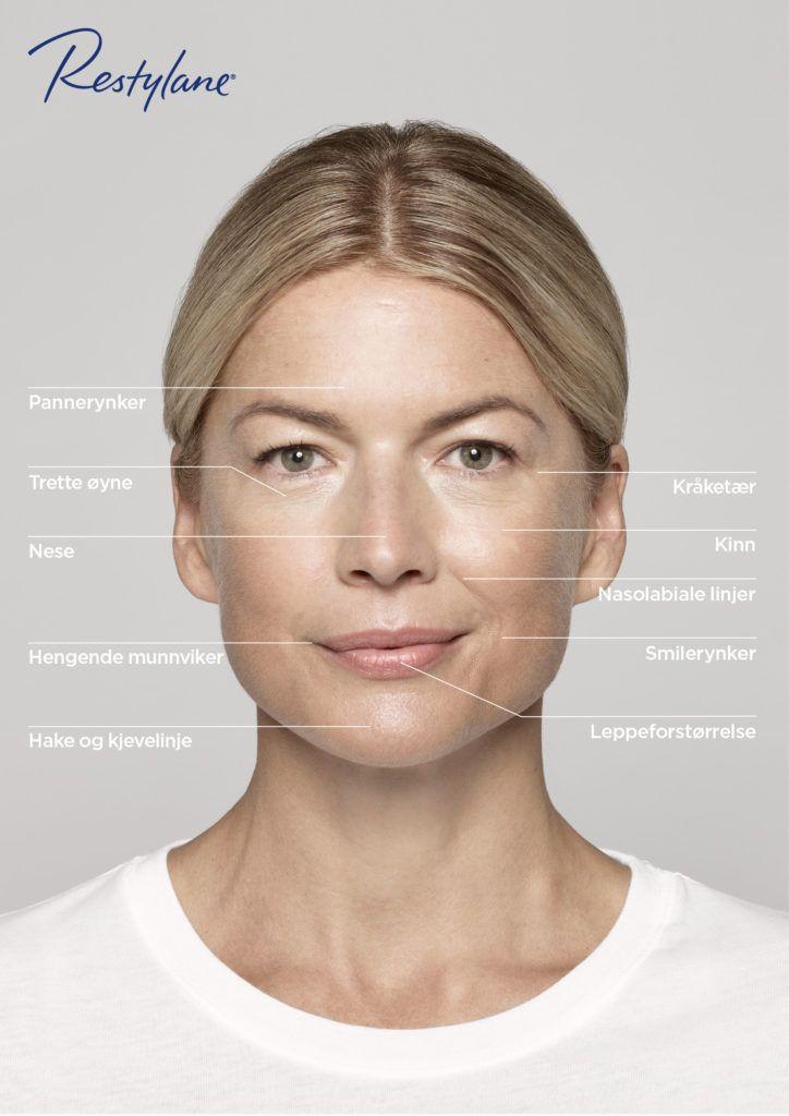 Med Restylane kan du på en naturlig måte gjenopprette ditt ungdommelige utseende, ved å forsterke dine ansiktskonturer og tilføre…