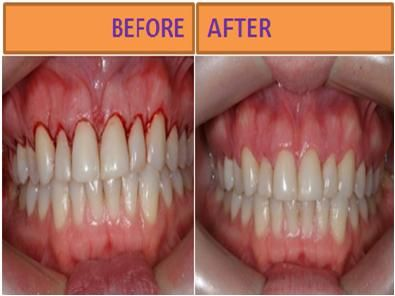 How To Get Rid Of Gingivitis At Home Step By Step Gingivitis Gum Disease Treatment Teeth Health