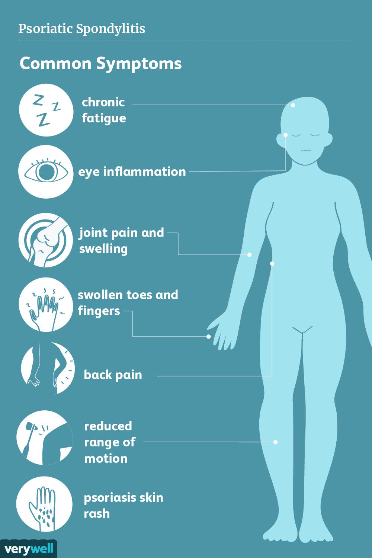 What Is Psoriatic Spondylitis Psoriatic Psoriatic Arthritis Psoriasis Arthritis