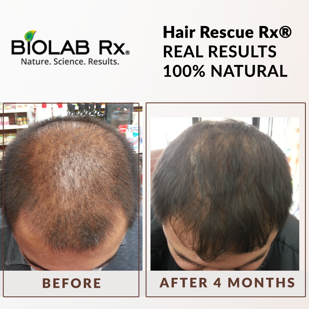 Hair Loss Thinning Hair Grow Long Thick Hair With Hair Rescue Rx For Men And Women Real Pe Hair Growth Solution Hair Growth Supplement Thinning Hair Loss