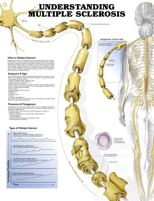 Understanding Multiple Sclerosis anatomy poster details signs ...