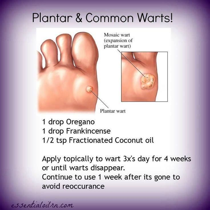 25+ best ideas about Get rid of warts on Pinterest | Wart medicine, Remove  warts and How to cure warts - 25+ Best Ideas About Get Rid Of Warts On Pinterest Wart Medicine