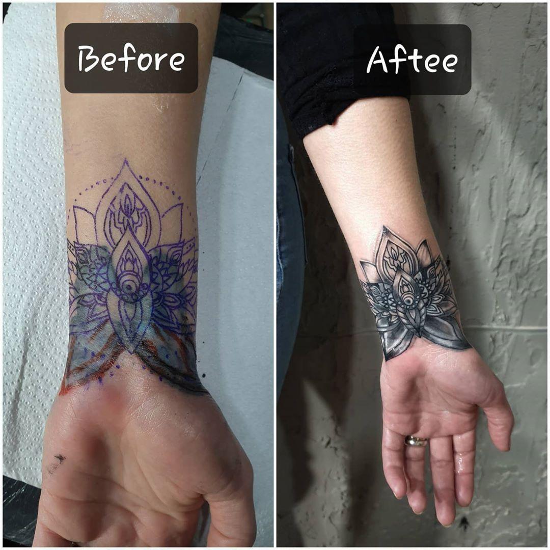 Cover up mandala #tattoo #tattoos #dövme#tattooink #dövmesanatı #piercing #inked #tats #instatattoo...