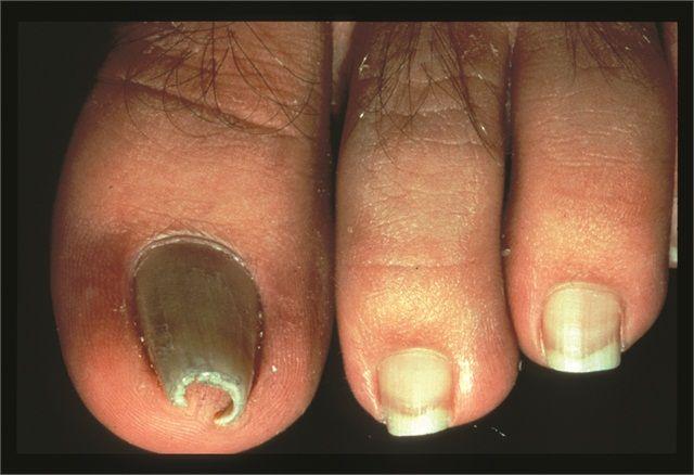 Under The Microscope Pincer Nails Nail Disorders Acrylic Toe Nails Toe Nails