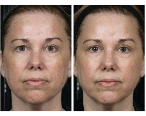 1 Week Post 6 Treatments Of Clear Brilliant Combined With Skinceuticals Ce Ferulic Treatment Light Skin Tone Medical Aesthetic Dermatology