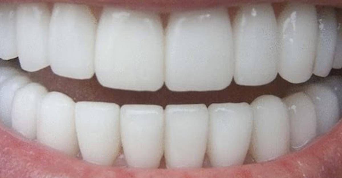 Aprenda A Clarear Os Dentes Em Casa Usando Babosa E Oleo Vegetal