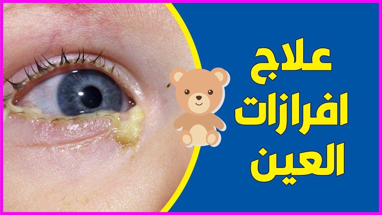 علاج انسداد القنوات الدمعية وعلاج افرازات العين عند الاطفال والرضع شو In 2020 Baby Health Baby Poster