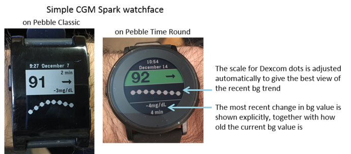 The latest Pebble watchface Simple CGM Spark has some nice