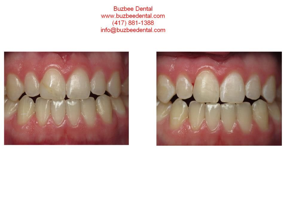 We Replaced This Old Discolored And Misshapen Filling The Shade On The New Filling Will Blend Even Better After Th Dental Before And After Pictures Dentistry