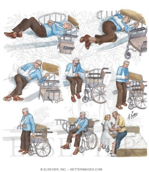 mobility in stroke rehabilitation How the national stroke association is advancing stroke rehabilitation with  may aid the recovery process by providing earlier mobility and restored.