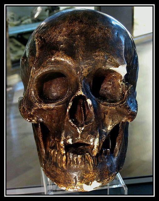 Skull of Robert I, King of Scots