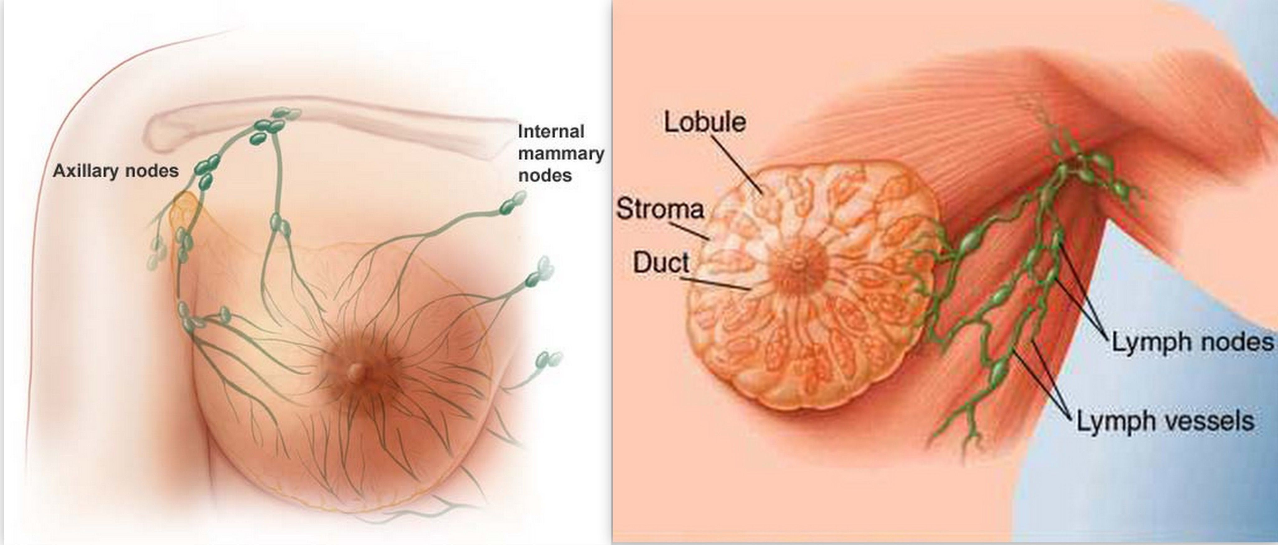 Breast lump move too seemed