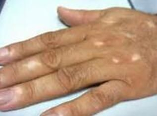 Vitiligo Symptoms How To Recognize Early Vitiligo Vitiligo Vitiligo Cure Symptoms