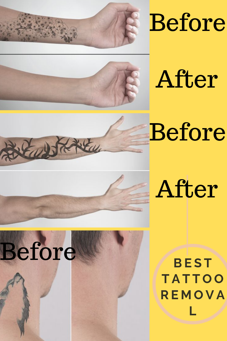 Tattoo Removal Before And After 2020 Natural tattoo