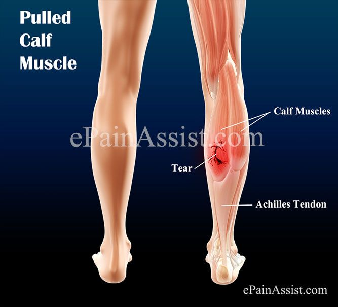 Pulled Calf Muscle Calf Pinterest Pulled Calf Muscle Calf