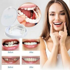 Details about Cosmetic Dentistry Snap On Instant Perfect Smile Comfort Fit Flex Teeth Veneers #setinstains