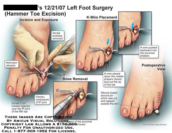 what to do for a hammer toe