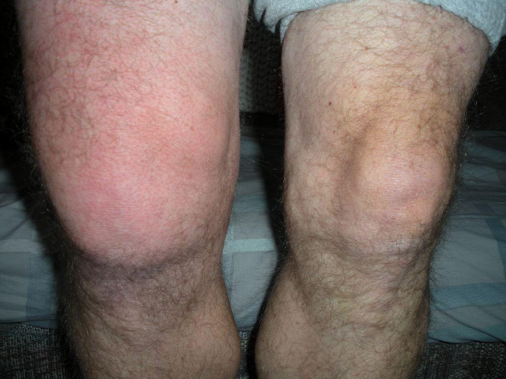 2b411cbf4503ca5c2c1c54657e629d82 - How To Get Rid Of Swelling And Fluid In Knee