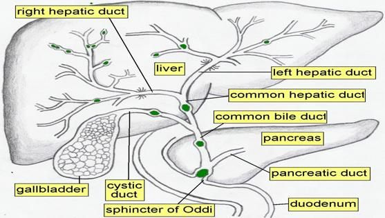 WK 4 BILIARY TREE PATHOLOGY Diagram of Biliary tree | Abd 200 Mod 3 ...