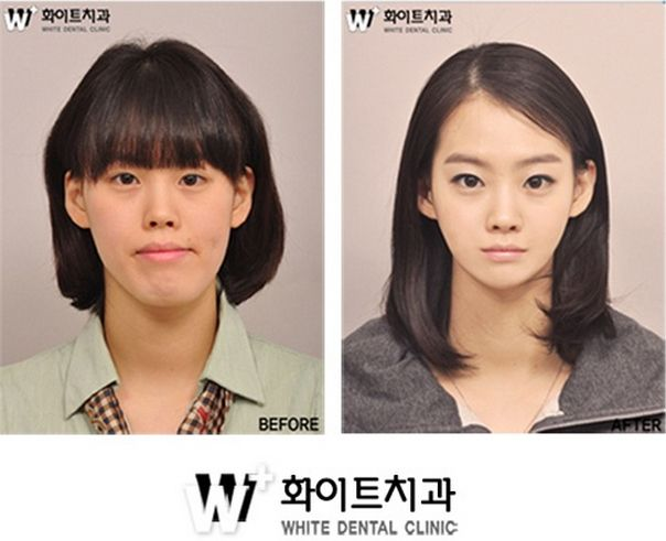 31 Crazy Before And After Photos Of Korean Plastic Surgery