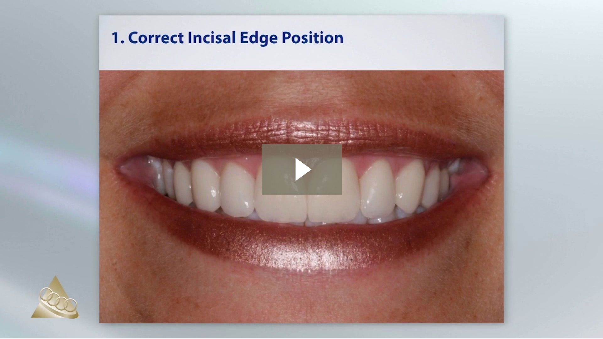 In this week's Dawson Quick Tip by Dr. John Cranham, discover the criteria for placing an ideal esthetic restoration using a dental implant.