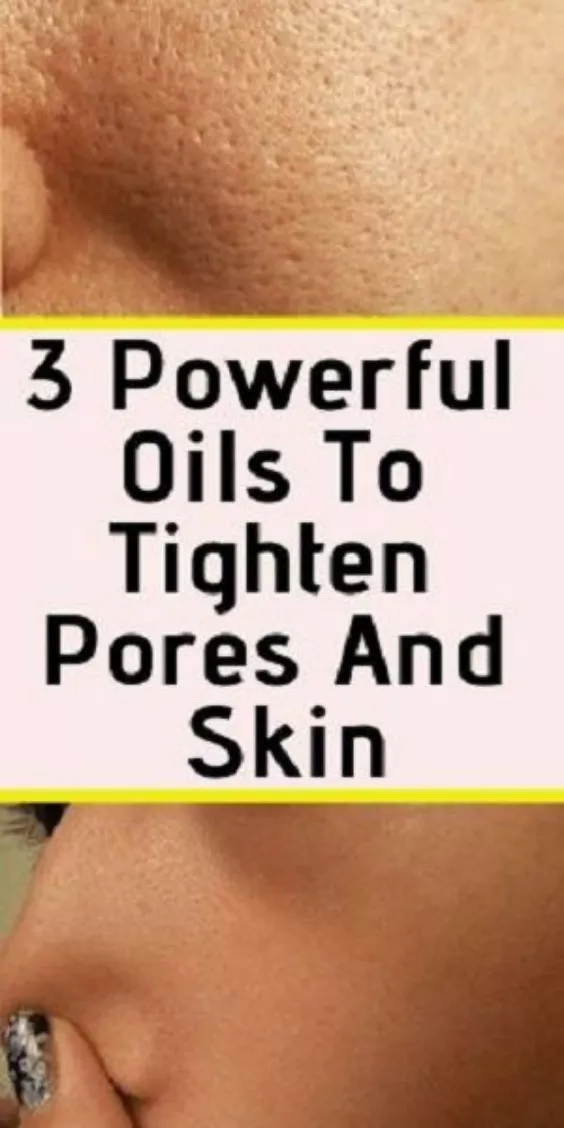 3 Powerful Essential Oils To Tighten Pores And Skin And How To Use Them #skintreatments