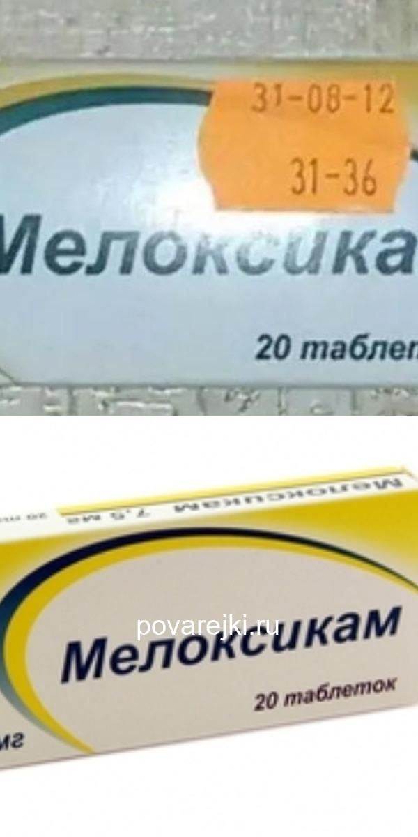 mazi din varicoză și preparate)