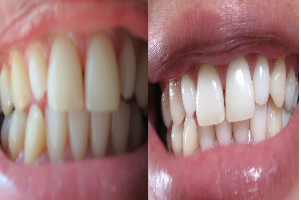 Como Clarear Os Dentes Com Agua Oxigenada Veja A Receita Beleza