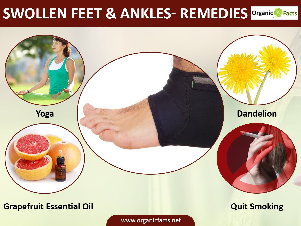 Some of the home remedies for swollen feet and ankles